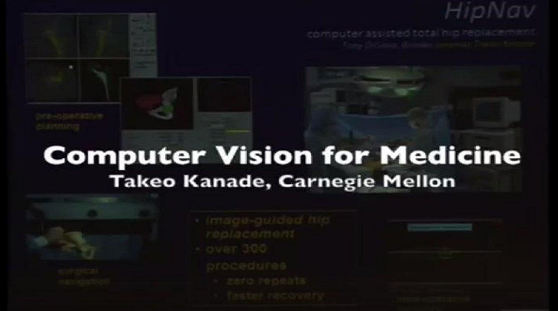 Computer vision for medicine
