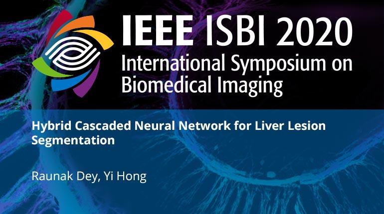 Hybrid Cascaded Neural Network for Liver Lesion Segmentation