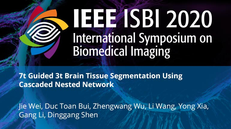 7t Guided 3t Brain Tissue Segmentation Using Cascaded Nested Network