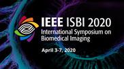 Lightweight U-Net for High-Resolution Breast Imaging