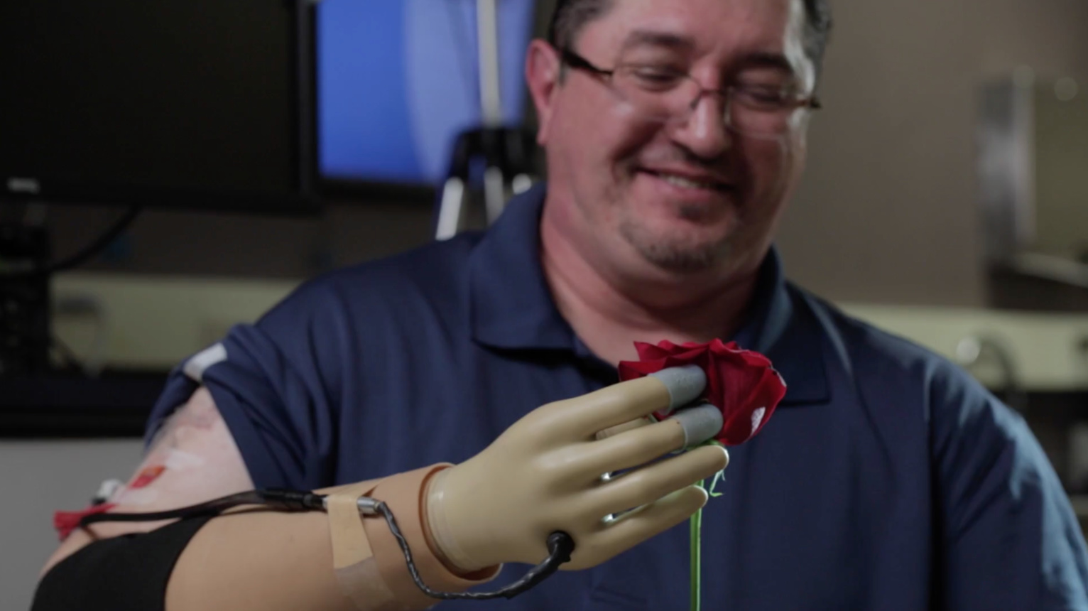 Prosthetic Hand Restores Amputee's Sense of Touch - IEEE Spectrum Report