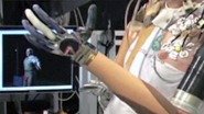 A Manhattan Project for the Prosthetic Arms Race