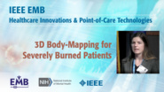 3D Body-Mapping for Severely Burned Patients - Julia Loegering - IEEE EMBS at NIH, 2019
